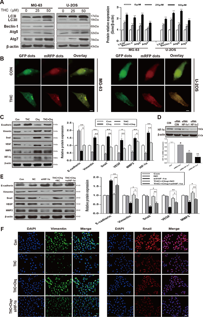 Autophagy activated by THC induces MET and suppresses angiogenesis in a HIF-1α-related manner.