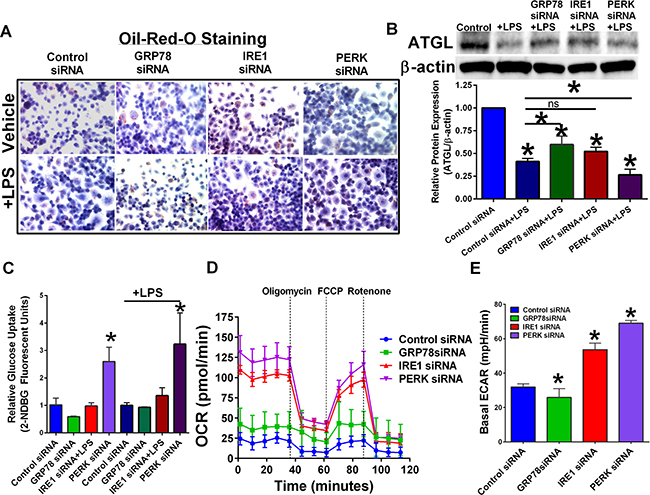 Targeting UPR signaling components differentially regulate cellular metabolism.
