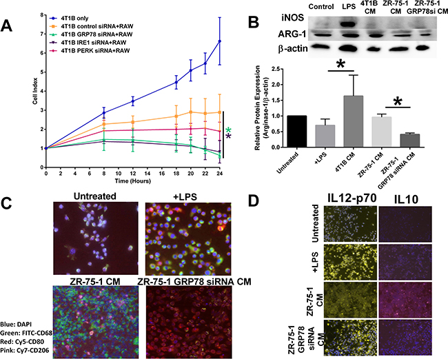 Inhibiting UPR signaling components in the tumor epithelial cell affects macrophage polarity.