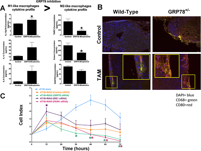 Dual targeting of UPR signaling in both tumor epithelial and macrophage cells affects macrophage recruitment and activity.