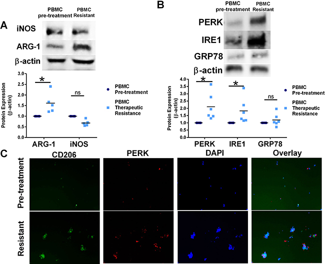 Resistance to CTLA-4 targeting immunotherapy modulates UPR signaling and shift macrophage polarity in human PBMC.