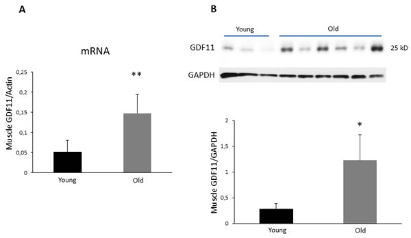 GDF11 mRNA and protein expression in skeletal muscles of young vs old male Balb/c mice.