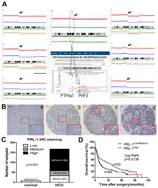 Figure1: Copy number analysis, expression levels and prognostic value of PRL-1 in patients with HCC.