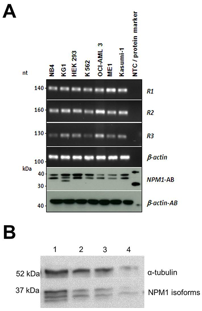 (A) Conventional PCR and Western blot analysis of NPM1 isoforms in cell lines.