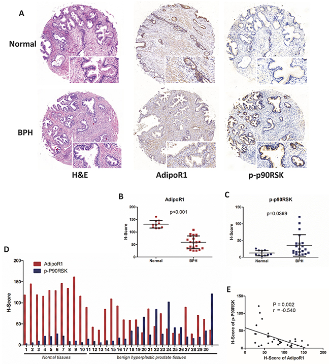Expression of AdipoR1 and phospho-p90RSK in normal and BPH tissues.