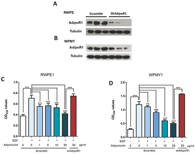 Adiponectin inhibits proliferation of prostatic epithelial and stromal cells.