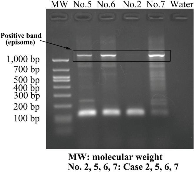 Amplification of papillomavirus oncogene transcripts (APOT) of HPV-6.
