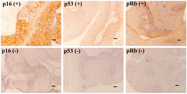 Immunohistochemistry for p16, p53, and pRb in AO-LP.