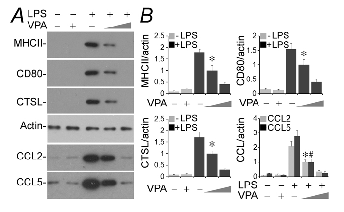 Valproate hinders podocyte acquisition of de novo immune phenotypes following LPS exposure.