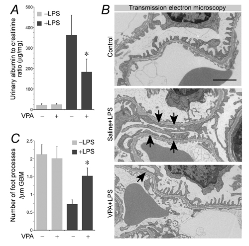 Valproate protects against podocyte injury and albuminuria in LPS-injured mice.