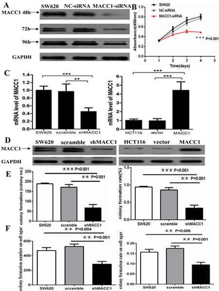 MACC1 protein expression reduced in SW620 cells transfected with MACC1-siRNA at 48, 72, and 96 hours.