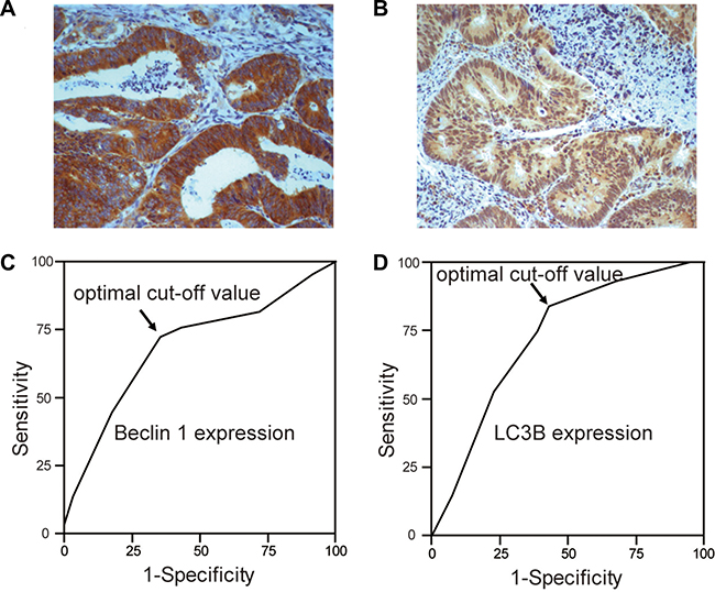 The expression of Beclin 1 and LC3B in CRC.