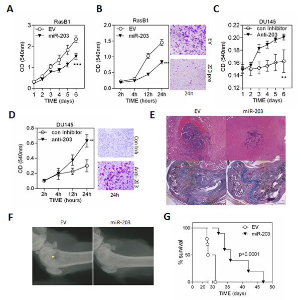 miR-203 inhibits cell metastasis of the RAS-activated prostate cancer cells, DU145-RasB1.