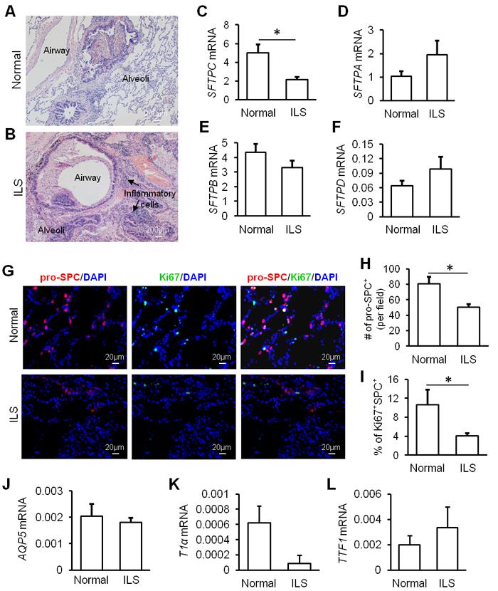 Alveolar homeostasis is disturbed in ILS.