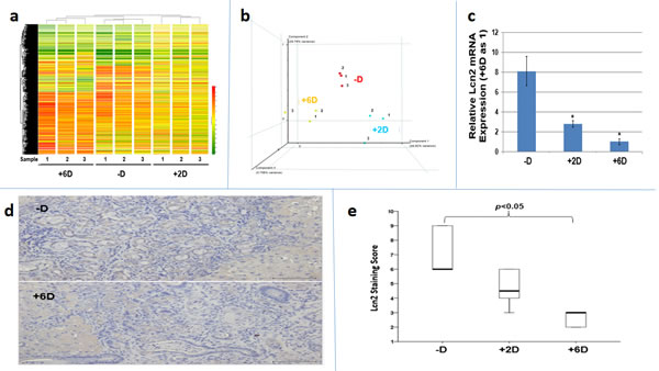 Analyses of tumor tissues obtained from -D, +2D and +6D groups of rats by microarray, qRT/PCR and immunohistochemistry (IHC) staining.