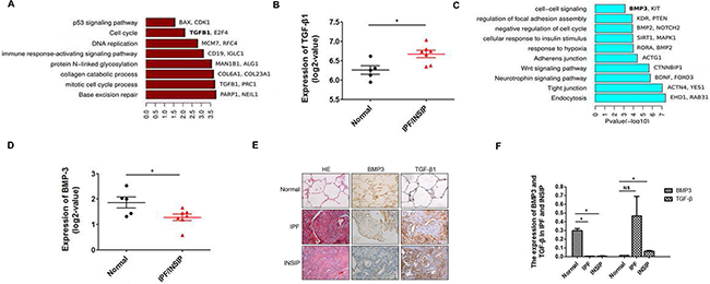 Bioinformatics analysis based on RNA-seq data of IPF and INSIP lung specimens.
