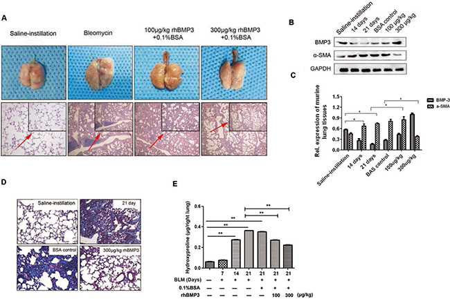 The fibrotic progress was reversed upon BMP3 administration in the bleomycin-induced murine model of pulmonary fibrosis.