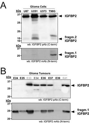 Relevance of IGFBP2 cleavage in gliomas.