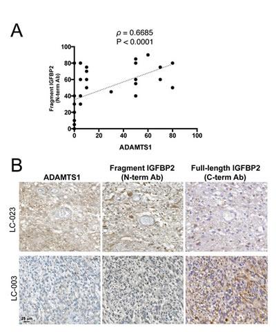 Correlation between ADAMTS1 and cleaved IGFBP2 in GBM.