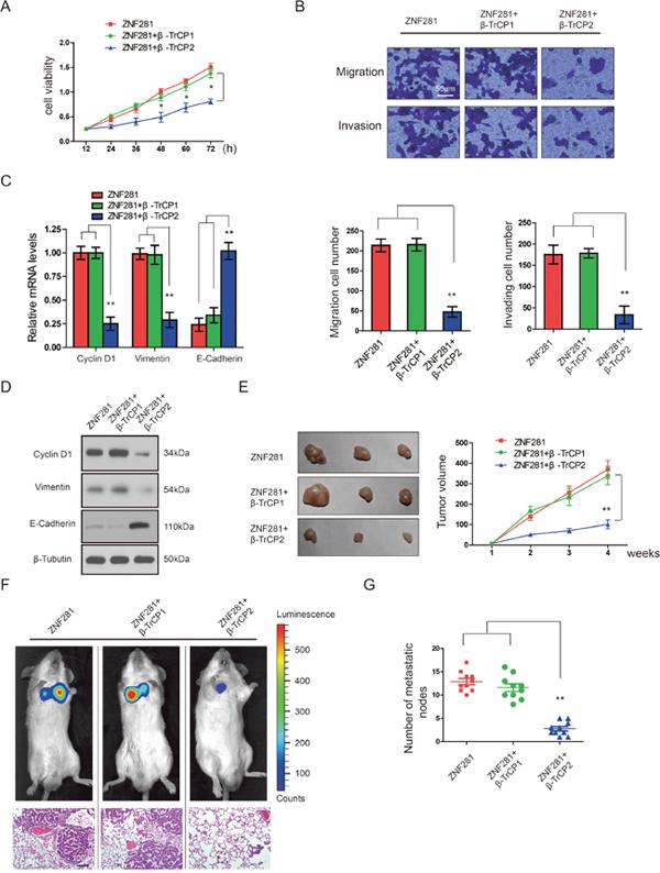 β-TrCP2, not β-TrCP1 overexpression inhibits the effects of ZNF281 in CRC in vitro and in vivo.