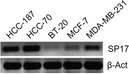 RT-PCR for SP17 in BC cell lines HCC1187, HCC70, BT20, MC-F7, and MDA-MB-231.