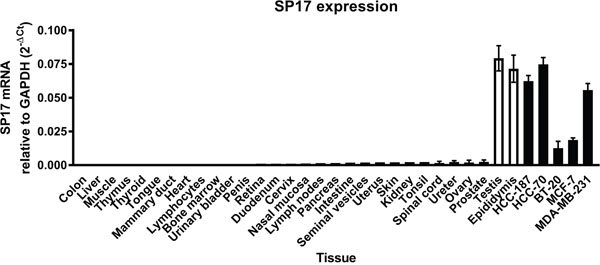 Analysis of SP17 expression in the indicated normal tissues and cancer cell lines.