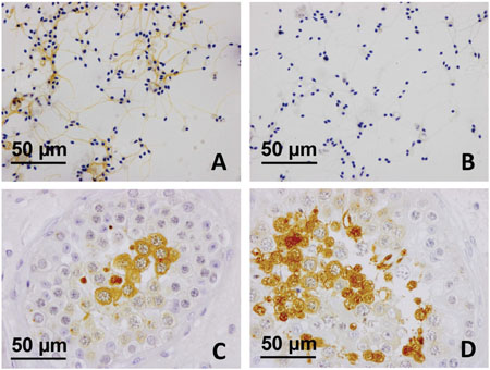 SP17 protein expression in ejaculated spermatozoa and testicular biopsy tissues.