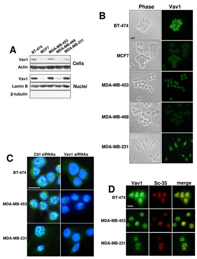 Nuclear Vav1 in breast cancer-derived cell lines.