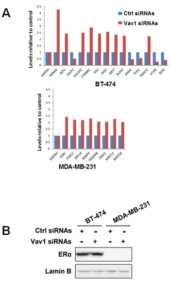 Role of Vav1 in modulating gene expression in breast tumor cells.