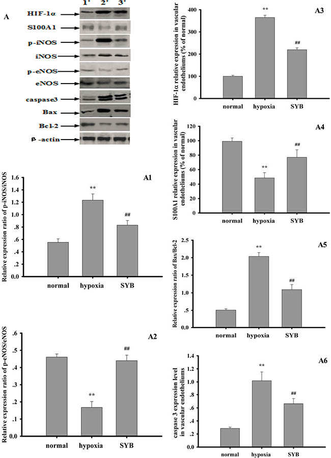 Effect of safflor yellow B on target protein expression in vascular endotheliums.