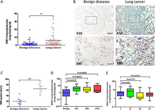 MMP-2 in lung cancer patients and benign diseases.
