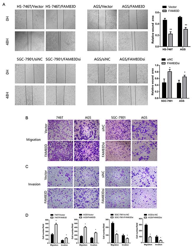 FAM83D enhances migration and invasion of GC cells.