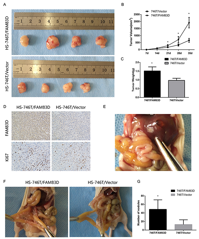Overexpression of FAM83D promotes subcutaneous tumor growth and peritoneal and other metastases in nude mice.
