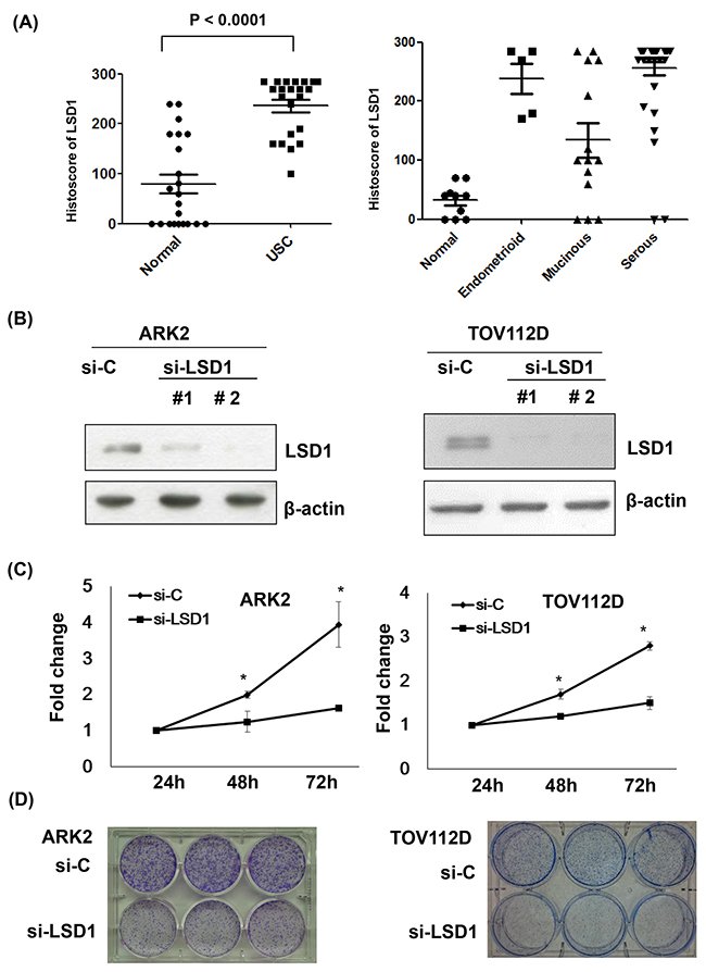Increased LSD1 expression in gynecologic malignancies.