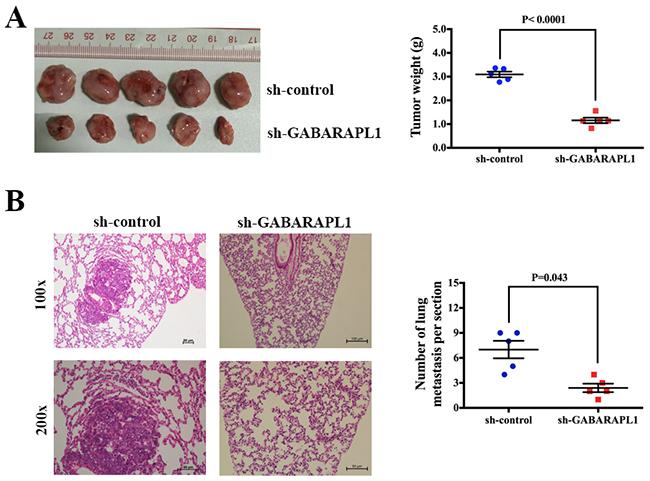 Inhibition of GABARAPL1 suppressed tumorigenesis and metastasis in xenograft model.