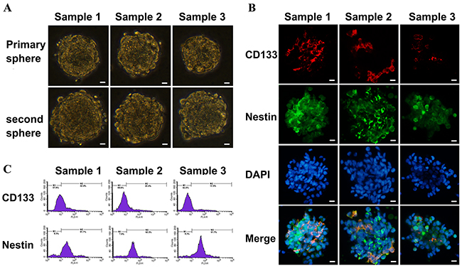 Identification of primary cultured GSCs from GBM samples.