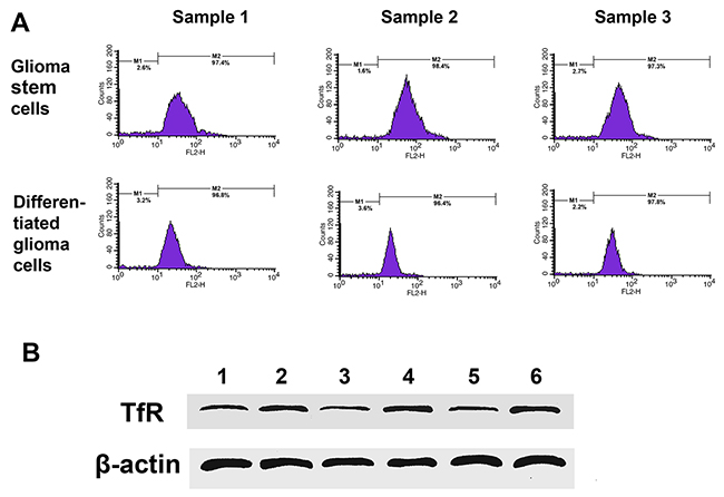 TfR expression in cultured cells from GBM resection samples.