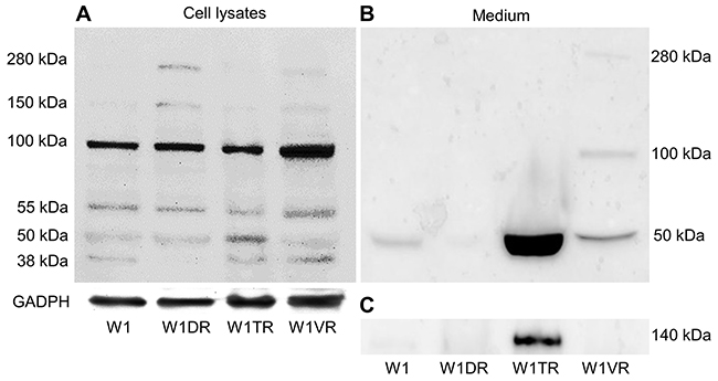 LUM protein expression analysis in the W1 and drug-resistant cell lines W1DR, W1TR and W1VR (A) and their corresponding media (B).
