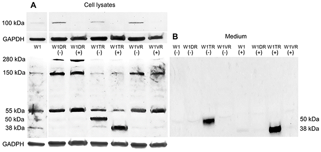 Deglycosylation of LUM with PGNase F in cell lysates (A) and proteins isolated from media (B).