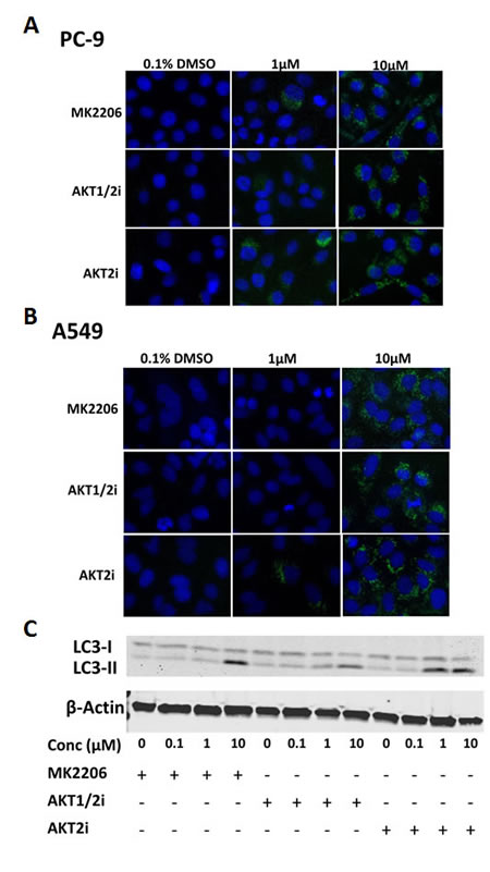 The effect of AKT inhibition on autophagy in NSCLC cells.