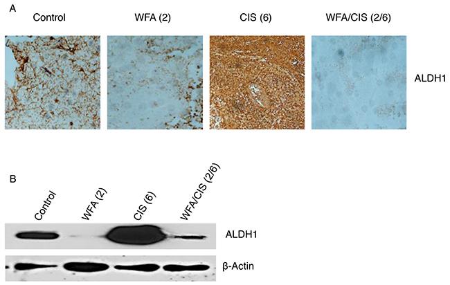 Immunohistochemical and western blot analysis of ALDH1.