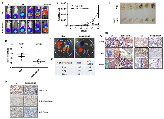 CCN3 is required for metastasis of PCa cells in mouse orthotopic model.