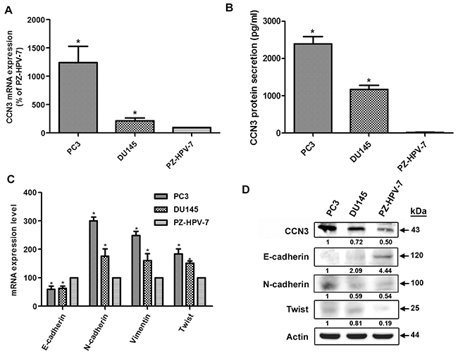 CCN3 is associated with mesenchymal phenotype in PCa cell lines.