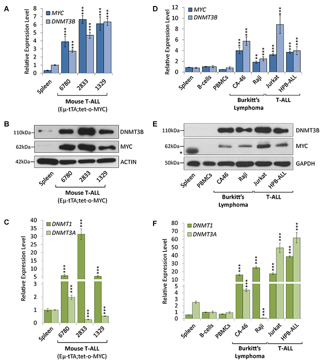 DNMT1 and DNMT3B are overexpressed in mouse and human T-ALL and Burkitt's lymphoma cell lines.