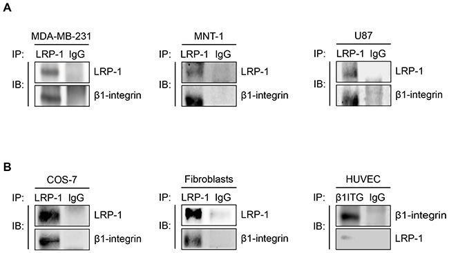 The LRP-1/β1-integrin complex is not only established in thyroid carcinoma.