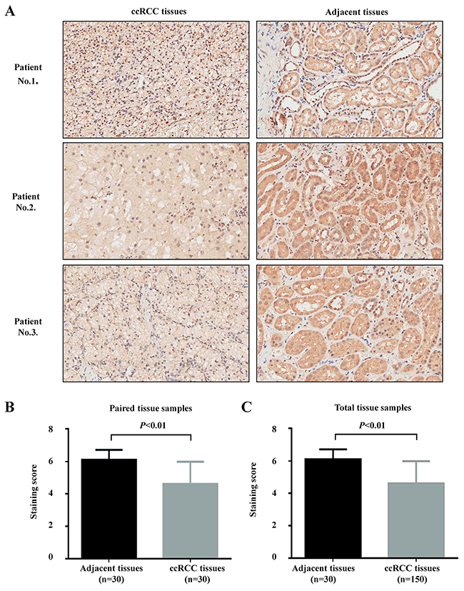 MPDZ expression is significantly downregulated in ccRCC tissues.