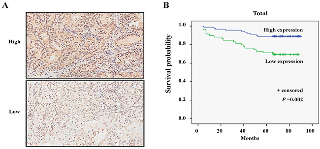 Low expression of MPDZ is significantly associated with poor survival in patients with ccRCC.