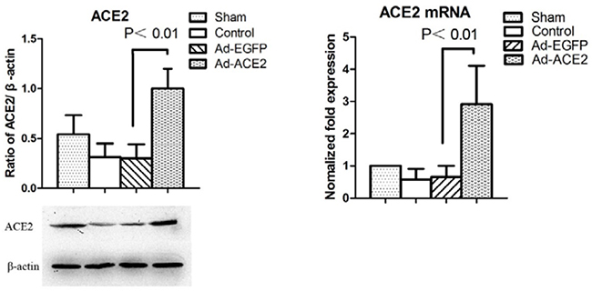 Western blot analysis of ACE2 protein levels from atrial tissues.