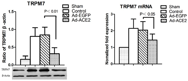 Western blot analysis of TRPM7 protein levels from atrial tissues.