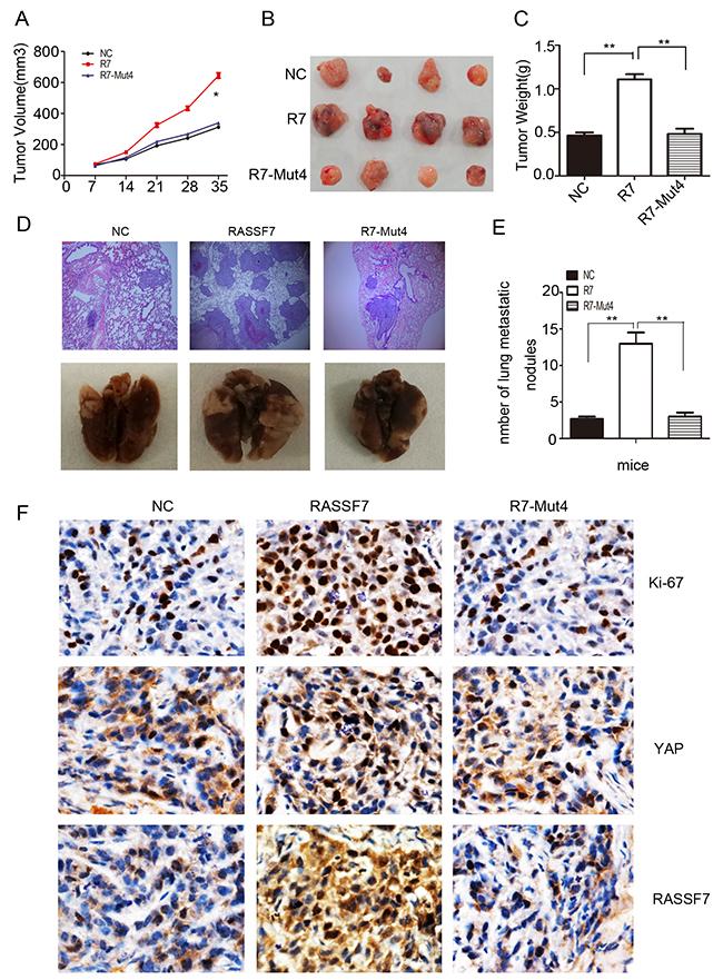 RASSF7 stimulates tumor proliferation and invasion in vivo.
